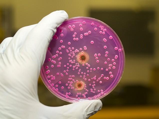 yeast bacteria petri dish