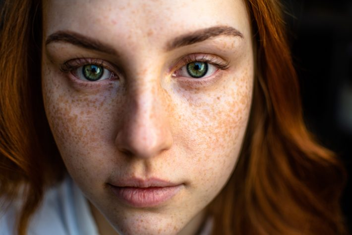 a redhead with freckles